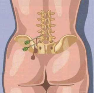 steroid injections lower back pain