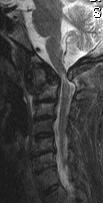 MRI Sag 9 28-10-05