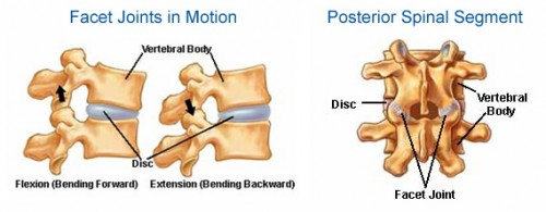 Facet Joint Disease
