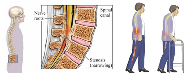 Portsmouth And Chichester Spine Surgeon Spineinfo Co Uk