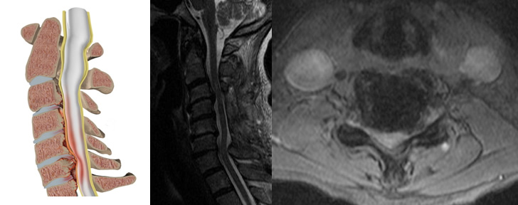 Portsmouth and Chichester Spine Surgeon SpineInfo co uk Cervical Laminoplasty