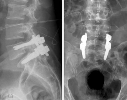 Write my spondylolisthesis caused by trauma